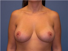 Breast Lift After Photo by Jeffrey Scott, MD; Bradenton, FL - Case 26040