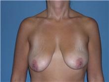 Breast Lift Before Photo by Jeffrey Scott, MD; Bradenton, FL - Case 26040