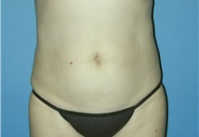 Liposuction After Photo by Jeffrey Scott, MD; Bradenton, FL - Case 26045