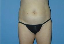 Liposuction Before Photo by Jeffrey Scott, MD; Bradenton, FL - Case 26045