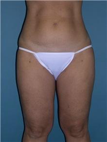 Liposuction After Photo by Jeffrey Scott, MD; Bradenton, FL - Case 26050