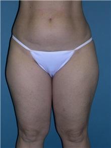 Liposuction Before Photo by Jeffrey Scott, MD; Bradenton, FL - Case 26050