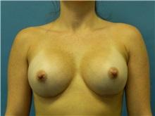 Breast Augmentation After Photo by Jeffrey Scott, MD; Bradenton, FL - Case 34717