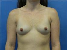 Breast Augmentation Before Photo by Jeffrey Scott, MD; Bradenton, FL - Case 34717