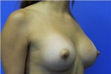 Breast Augmentation After Photo by Jeffrey Scott, MD; Bradenton, FL - Case 34760