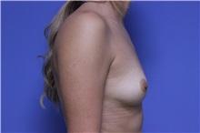 Breast Augmentation Before Photo by Jeffrey Scott, MD; Bradenton, FL - Case 34760