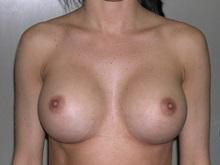 Breast Augmentation After Photo by Jeffrey Scott, MD; Bradenton, FL - Case 34762