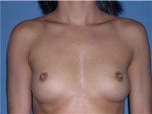 Breast Augmentation Before Photo by Jeffrey Scott, MD; Bradenton, FL - Case 34762