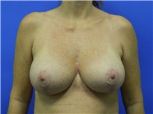 Breast Lift After Photo by Jeffrey Scott, MD; Bradenton, FL - Case 34795