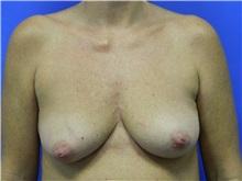 Breast Lift Before Photo by Jeffrey Scott, MD; Bradenton, FL - Case 34795