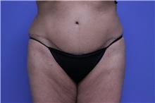 Tummy Tuck After Photo by Jeffrey Scott, MD; Bradenton, FL - Case 34802