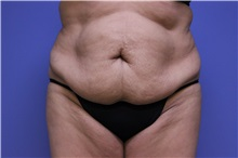 Tummy Tuck Before Photo by Jeffrey Scott, MD; Bradenton, FL - Case 34802