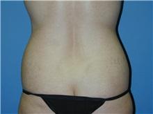 Liposuction Before Photo by Jeffrey Scott, MD; Bradenton, FL - Case 34840
