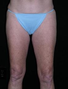 Liposuction After Photo by Jeffrey Scott, MD; Bradenton, FL - Case 34842
