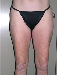 Liposuction Before Photo by Jeffrey Scott, MD; Bradenton, FL - Case 34842