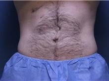 Liposuction After Photo by Jeffrey Scott, MD; Bradenton, FL - Case 35035