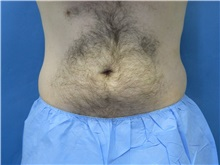 Liposuction Before Photo by Jeffrey Scott, MD; Bradenton, FL - Case 35035