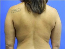 Liposuction After Photo by Jeffrey Scott, MD; Bradenton, FL - Case 35039