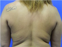Liposuction Before Photo by Jeffrey Scott, MD; Bradenton, FL - Case 35039