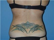 Liposuction After Photo by Jeffrey Scott, MD; Bradenton, FL - Case 35041