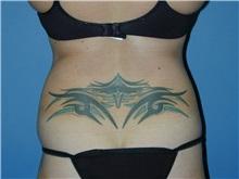 Liposuction Before Photo by Jeffrey Scott, MD; Bradenton, FL - Case 35041