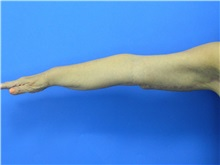 Arm Lift After Photo by Jeffrey Scott, MD; Bradenton, FL - Case 35166