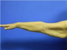 Arm Lift Before Photo by Jeffrey Scott, MD; Bradenton, FL - Case 35166