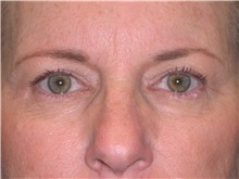 Eyelid Surgery Before Photo by Jeffrey Scott, MD; Bradenton, FL - Case 35169