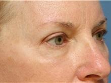 Eyelid Surgery After Photo by Jeffrey Scott, MD; Bradenton, FL - Case 35169