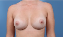 Breast Augmentation After Photo by C. Bob Basu, MD, MBA, MPH, FACS; Cypress, TX - Case 34696