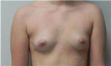 Breast Augmentation Before Photo by C. Bob Basu, MD, MBA, MPH, FACS; Cypress, TX - Case 34696