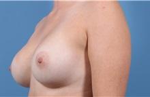 Breast Augmentation After Photo by C. Bob Basu, MD, MPH, FACS; Cypress, TX - Case 34696