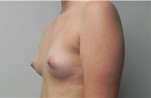 Breast Augmentation Before Photo by C. Bob Basu, MD, MPH, FACS; Cypress, TX - Case 34696