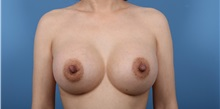 Breast Augmentation After Photo by C. Bob Basu, MD, MBA, MPH, FACS; Cypress, TX - Case 34699