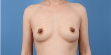Breast Augmentation Before Photo by C. Bob Basu, MD, MBA, MPH, FACS; Cypress, TX - Case 34699