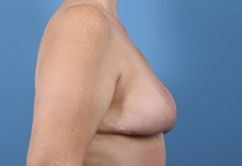 Breast Lift After Photo by C. Bob Basu, MD, MBA, MPH, FACS; Cypress, TX - Case 34702