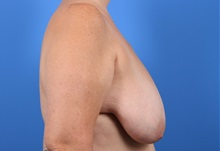 Breast Lift Before Photo by C. Bob Basu, MD, MBA, MPH, FACS; Cypress, TX - Case 34702