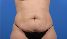 Tummy Tuck Before Photo by C. Bob Basu, MD, MBA, MPH, FACS; Cypress, TX - Case 34706