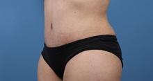 Tummy Tuck After Photo by C. Bob Basu, MD, MPH, FACS; Cypress, TX - Case 34706