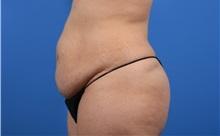 Tummy Tuck Before Photo by C. Bob Basu, MD, MPH, FACS; Cypress, TX - Case 34706