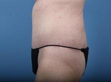 Body Lift After Photo by C. Bob Basu, MD, MBA, MPH, FACS; Cypress, TX - Case 34709