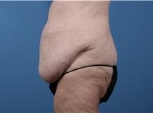 Body Lift Before Photo by C. Bob Basu, MD, MBA, MPH, FACS; Cypress, TX - Case 34709