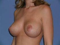 Breast Augmentation After Photo by Steve Sample, MD, FACS; Arlington Heights, IL - Case 23306