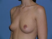 Breast Augmentation Before Photo by Steve Sample, MD, FACS; Arlington Heights, IL - Case 23306