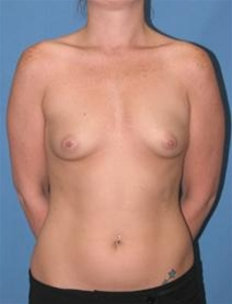 Breast Augmentation Before Photo by Steve Sample, MD, FACS; Arlington Heights, IL - Case 23307