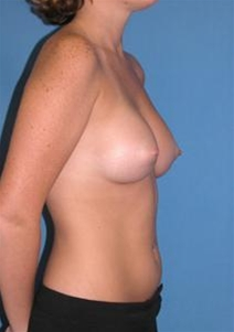 Breast Augmentation After Photo by Steve Sample, MD, FACS; Arlington Heights, IL - Case 23307