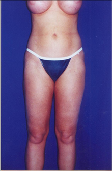 Buttock Implants After Photo by Steve Sample, MD, FACS; Arlington Heights, IL - Case 24131