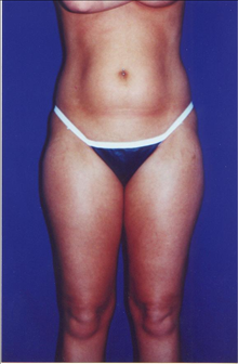 Buttock Implants Before Photo by Steve Sample, MD, FACS; Arlington Heights, IL - Case 24131