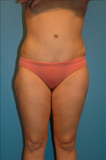 Tummy Tuck After Photo by Steve Sample, MD, FACS; Arlington Heights, IL - Case 24141