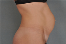 Tummy Tuck Before Photo by Steve Sample, MD, FACS; Arlington Heights, IL - Case 24142
